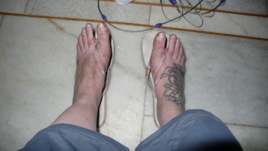 Filthy sore feet in India